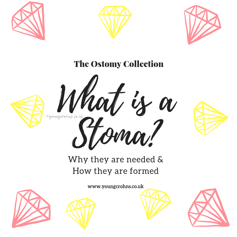 """The """"What is a Stoma?"""" Series – Part II"""